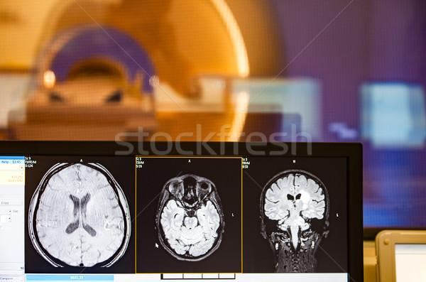 女性 患者 座って 病院用ベッド 笑みを浮かべて 青 ストックフォト © vilevi