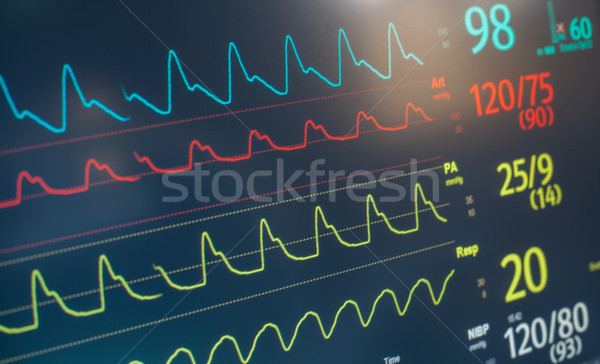 Monitor Heart Rate Beat Stock photo © vilevi