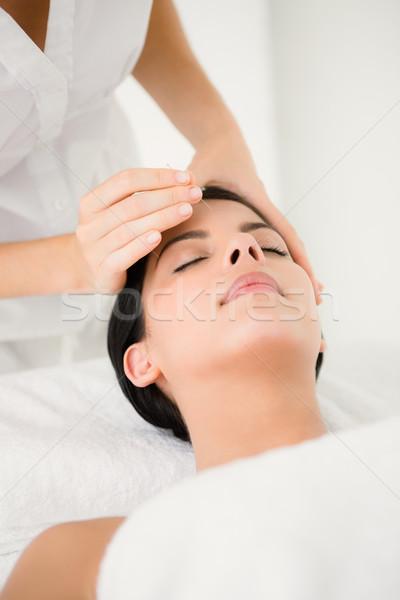 Vrouw acupunctuur therapie spa gezicht lichaam Stockfoto © wavebreak_media