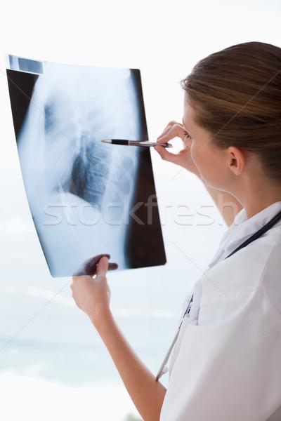 Medico Xray pen medici medicina care Foto d'archivio © wavebreak_media