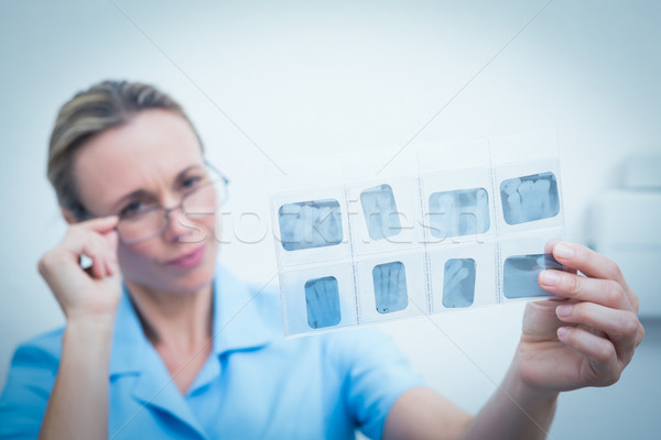 Női fogorvos néz röntgen koncentrált nő Stock fotó © wavebreak_media