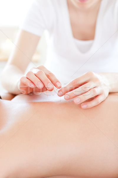 Close-up of a youngman in an acupuncture therapy in a Spa center  Stock photo © wavebreak_media