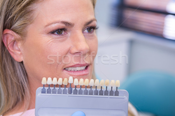 Tooth whitening equipment by smiling patient at medical clinic Stock photo © wavebreak_media