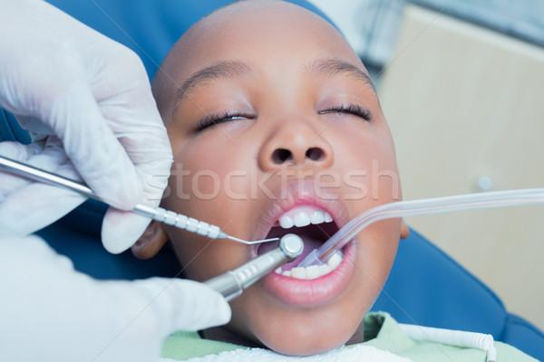 Foto d'archivio: Ragazzo · denti · dentista · bambino · lavoro