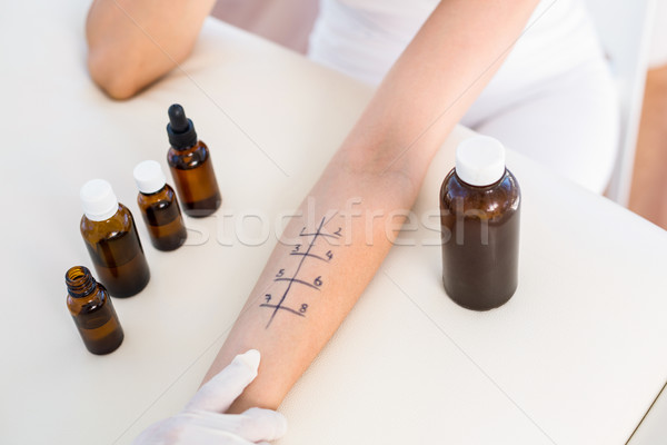 Doctor doing skin prick test at her patient Stock photo © wavebreak_media