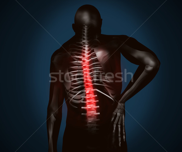 Black digital figure with back pain Stock photo © wavebreak_media