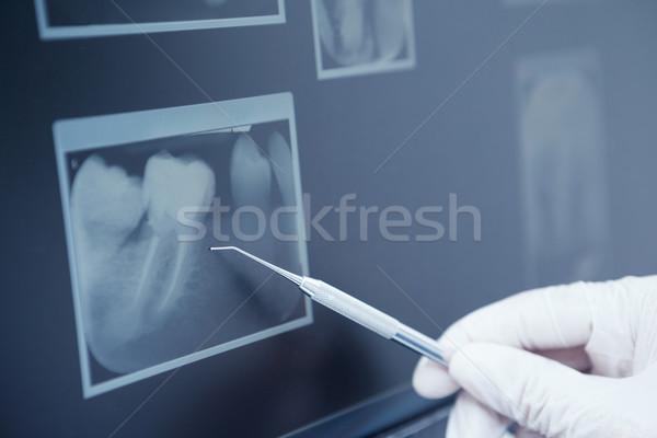 Gloved hand holding dental tool to teeth x-ray Stock photo © wavebreak_media