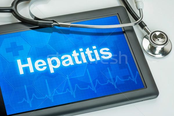 Tabletta diagnózis kirakat számítógép orvos technológia Stock fotó © Zerbor