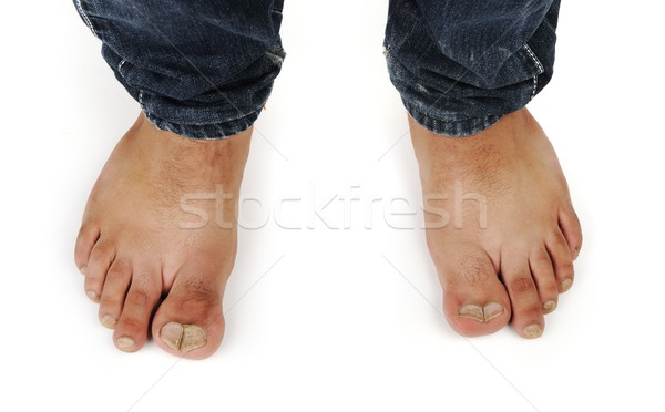 Stock photo: deformed male feet