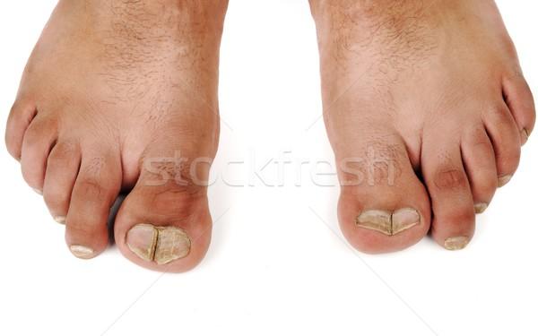 Misvormd mannelijke voeten medische lichaam geneeskunde Stockfoto © zurijeta