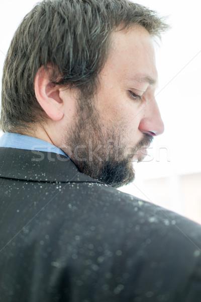 A man having man dandruff in the hair Stock photo © zurijeta