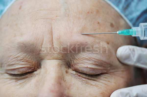 Aged female receiving botox injection in forehead Stock photo © zurijeta