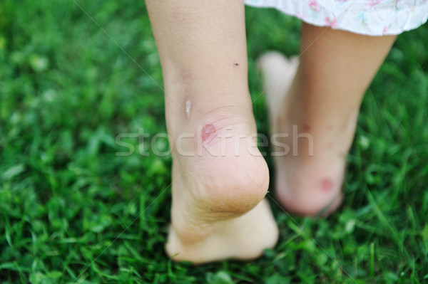 Human walking on grass with callus on feet Stock photo © zurijeta