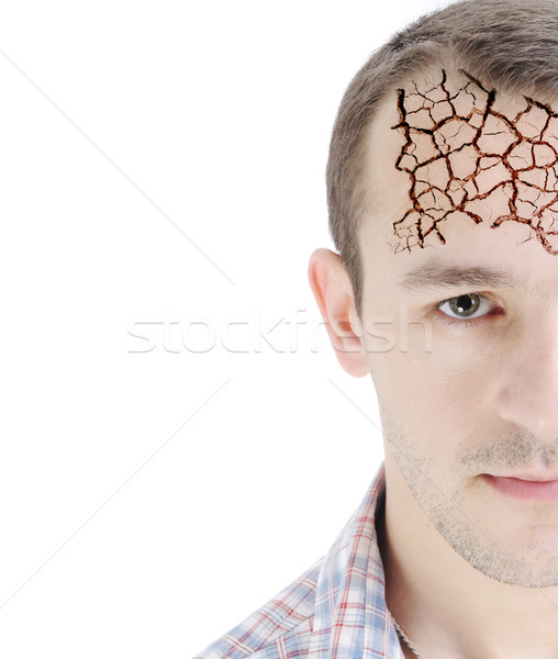 Man's head, isolated on white, half-faced, dry forehead skin, conceptual photo Stock photo © zurijeta