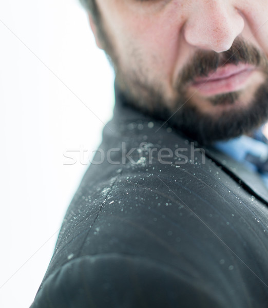 A man having man dandruff in the hair Stock photo © zurijeta
