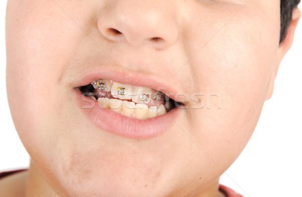 Kid tonen af bretels gezicht gelukkig Stockfoto © zurijeta