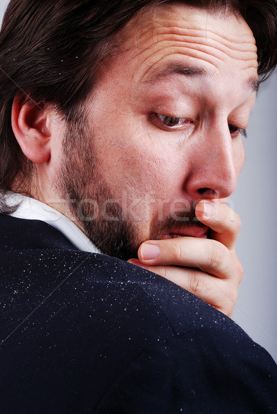 Dandruff issue on man's sholder Stock photo © zurijeta