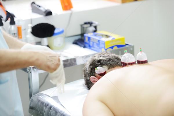 Medical Hijama cupping therapy on human body Stock photo © zurijeta