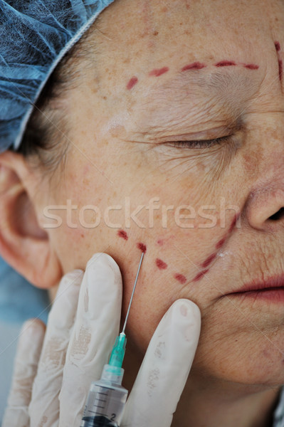 Botox Stock photo © zurijeta