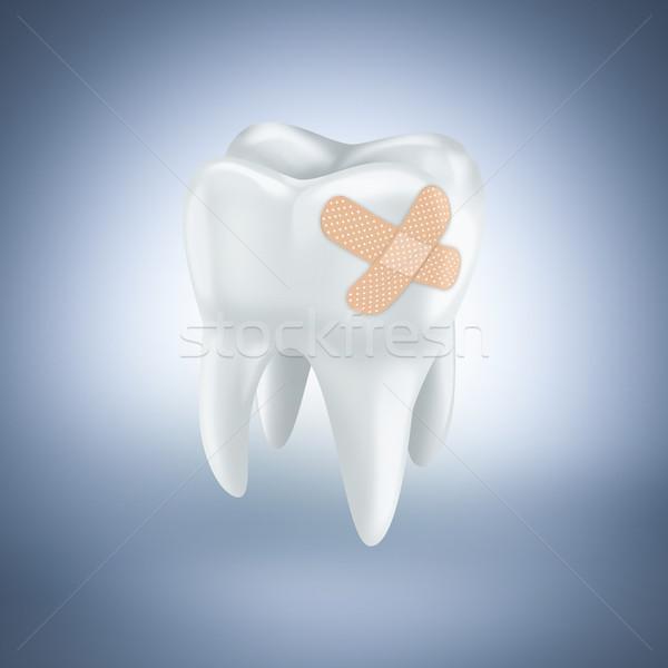 歯 石膏 水色 医療 健康 クラウン ストックフォト © zven0